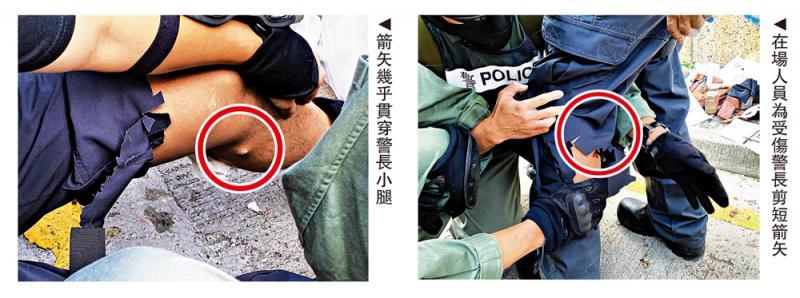 ?诅咒警员截肢 暴徒煽用毒箭