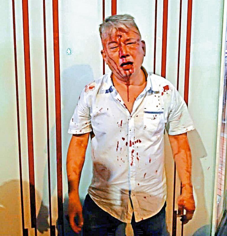 香港:升斗市民一定要表態