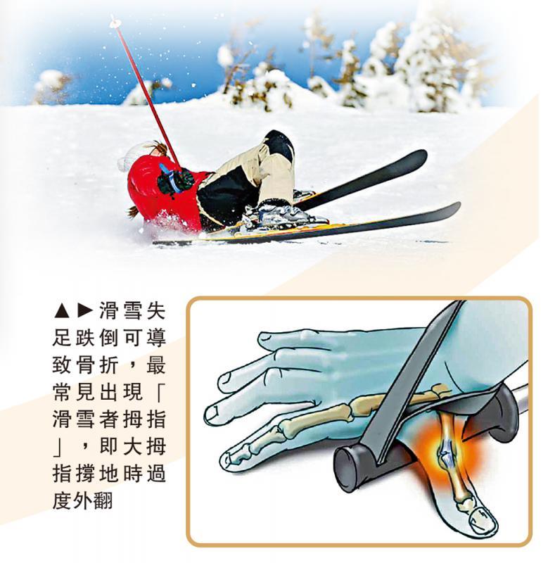 ?話你知\滑雪初哥易受傷 小心擇路 量力而為