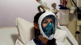 ?医疗物资紧缺 多国浮潜面罩改呼吸器