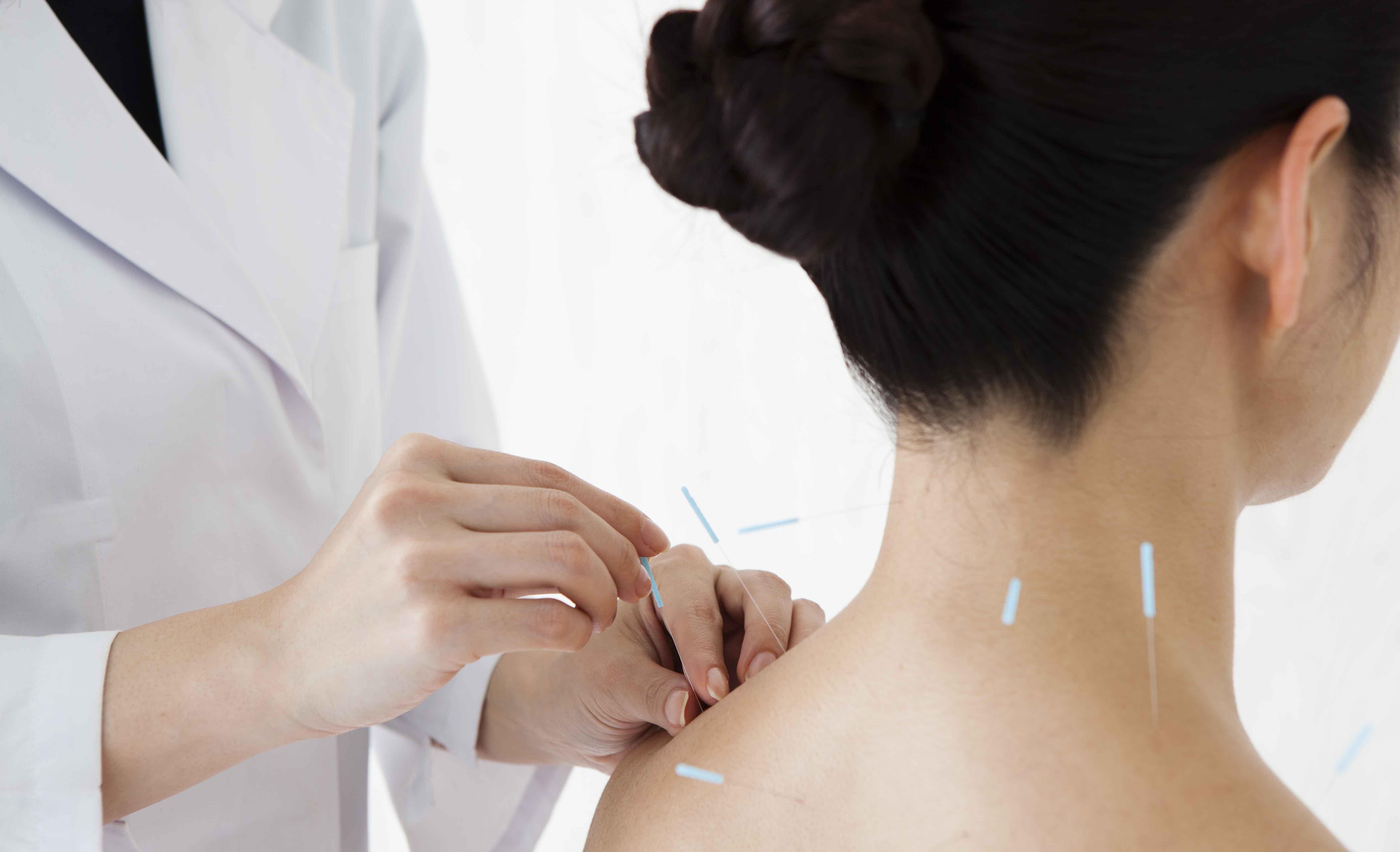 中风康复期针灸及运动治疗攻略