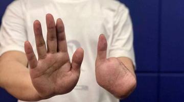 四川男子被骗至缅北 拒绝电诈被剁4根手指